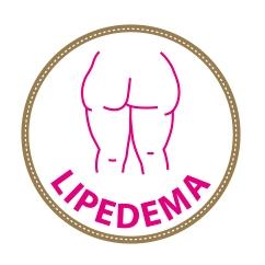 Informacion general sobre lipedema